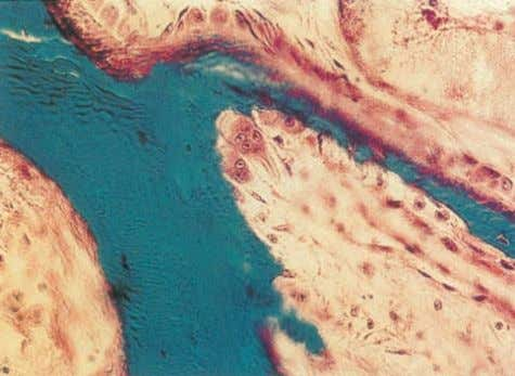 of osteoblasts. Courtesy of Professor Sheila Jones Figure 2.4 Histology showing osteoblasts on one side of