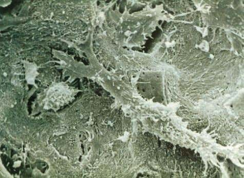 from the bone-forming surface, their protein-synthesizing Figure 2.7 SEM of osteocytes in the bone lacunae. A