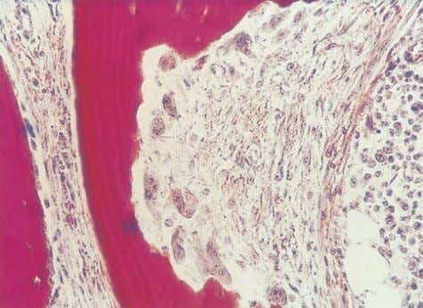 AN ATLAS OF OSTEOPOROSIS Figure 2.12 Histology from a patient with primary hyperparathyroidism showing a resorption