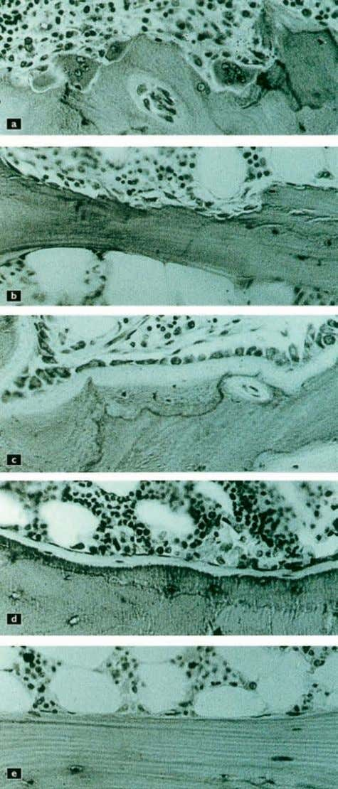 include interleukin-1 (IL-1), interleukin-6 (IL-6), Figure 2.15 Histological biopsy sections from the iliac