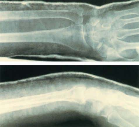 showing a Colles' fracture. Courtesy of Mr Paul Allen Figure 5.3 Radiographs of the distal forearm