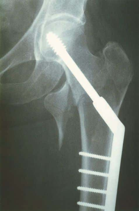 an extracapsular hip fracture. Courtesy of Mr Paul Allen Figure 5.6 Radiograph of the proximal femur