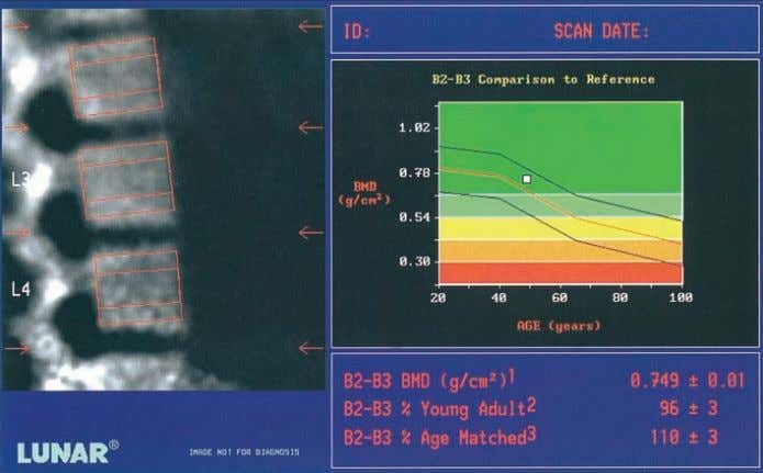 DIAGNOSIS Figure 5.9 DEXA (Lunar DPX-IQ) measurements of lum- bar spine bone density in an osteoporotic