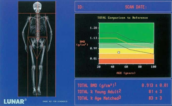 DIAGNOSIS Figure 5.15 DEXA (Lunar DPX-IQ) measurements of total body bone mineral density in an osteoporotic