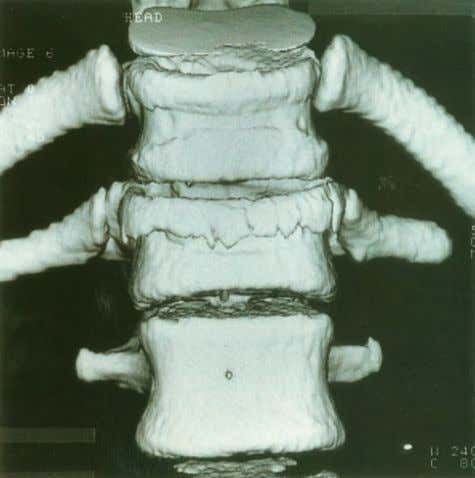 and to estimate bone biomechanical properties 2 4 . Figure 5.23 Three-dimensional CT of osteoporotic vertebral