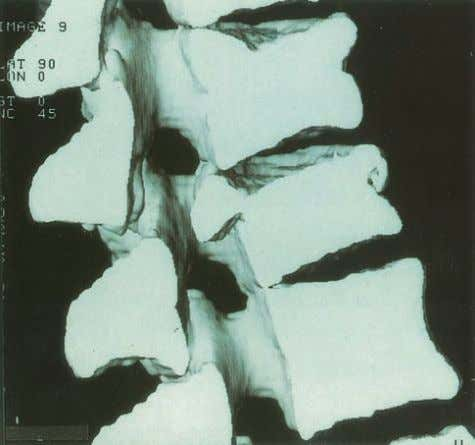 DIAGNOSIS Figure 5.24 Three-dimensional CT of osteoporotic ver- tebral crush fractures (lateral view). Courtesy of