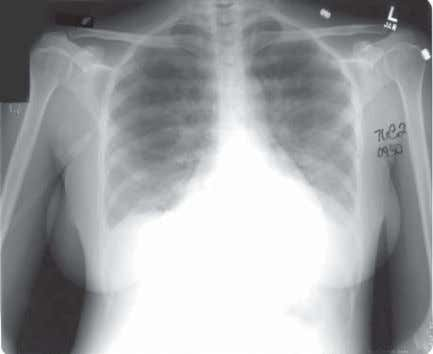 The chest radiograph was normal at the time of admis- sion. Fig. 2 After colonoscopy, a