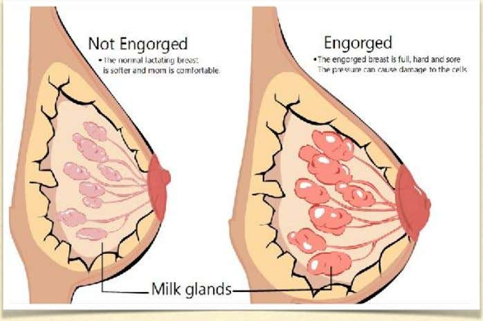 Source: https://www.womensmd.org/breastfeeding/engorged-breasts/ Source: http://gynaeonline.com/ breast_engorgement.htm