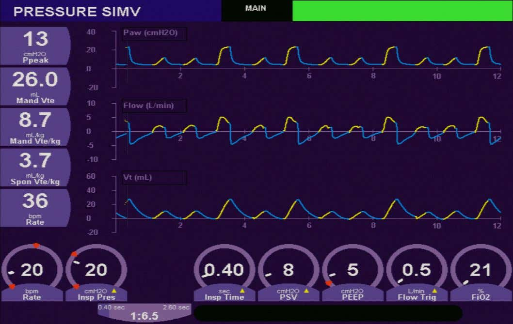 SIMV with Spontaneous Pressure Supported Breaths