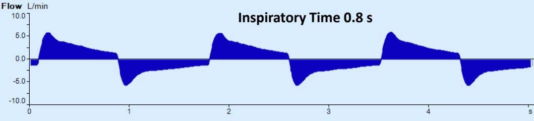Inspiratory Time 0.8 s