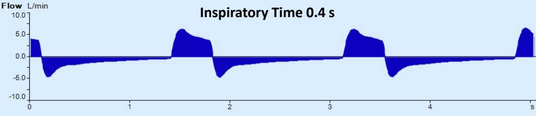Inspiratory Time 0.4 s
