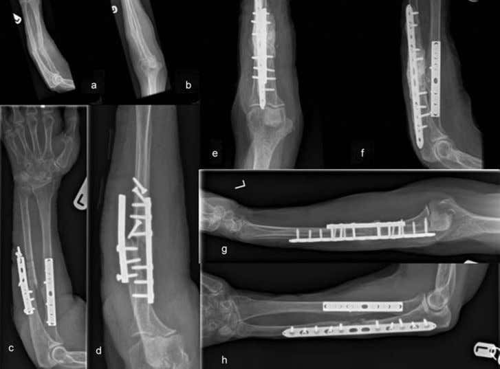 / Injury, Int. J. Care Injured 47S6 (2016) S53 – S61 S61 Fig. 4. Forearm fracture