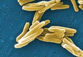 comprise what is known as the M. tuberculosis complex. Tuberculosis(TB) remains Fig.1.1 Mycobacterium tuberculosis
