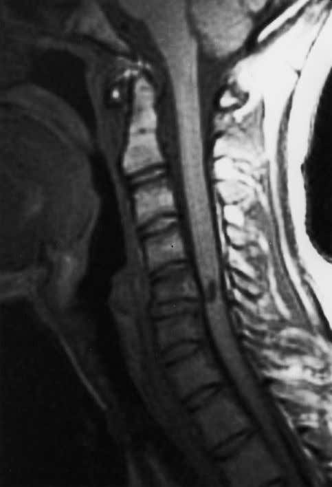 T 1 W is slightly hyperintense to cerebrospinal fluid. Figure 4. Sagittal T 1 W spin