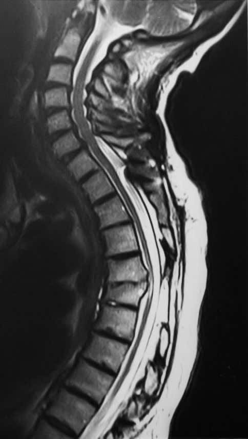 Pictorial review: MRI of chronic spinal cord injury Figure 2. Sagittal T 2 W fast spin