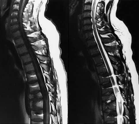 showing a well-defined post-traumatic spinal cord cyst. 350 (a) (b) Figure 6. (a) Sagittal T 1