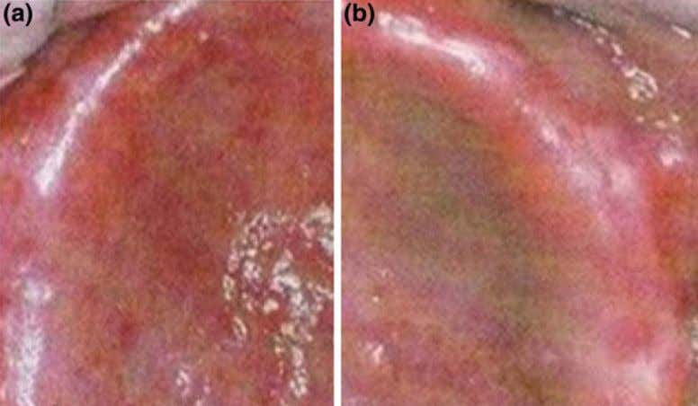Biocompatibility Issues of Biomaterials 51 Fig. 10 a Allergic reaction to MMA in denture base material;