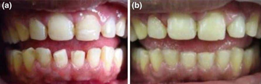 (Anusavice et al. 2013 ). Current dental resin systems are Fig. 13 Composite resins as direct