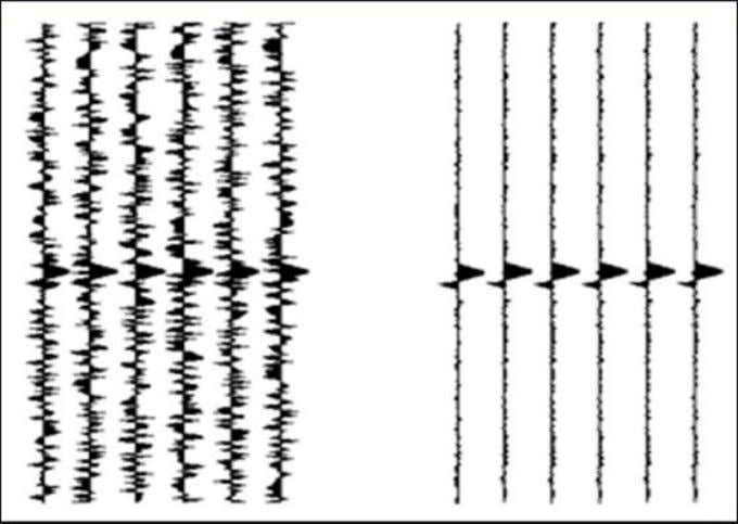 gives the amplitude of the stacked trace in the CMP gather. Figure 6.9: Stacking. Seismic traces