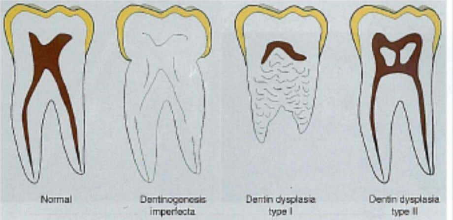 Lesions can be seen. however the outer view/Coronal view Dentine Dysplasia Type 2- Has two different