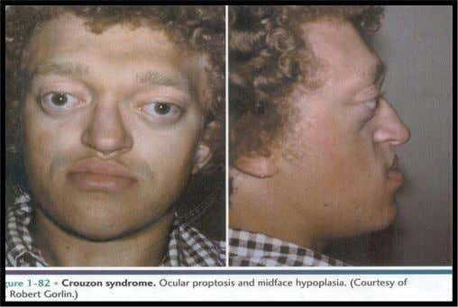 Nose appears beak like, maxilla is depressed along with the sinus area, short upper lip and