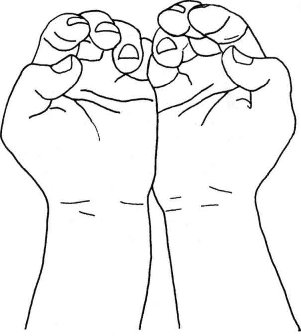 the atlas and axis. Continue to traction down the dural tube. Figure 32: Hand position for