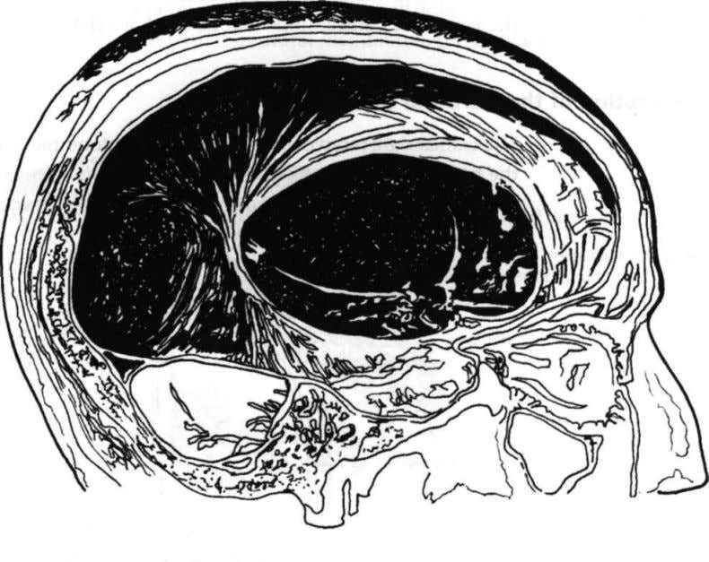 is the straight sinus. Figure 14: Cranial membrane system The horizontal tentorium cerebellum divides the occipital