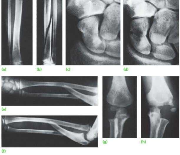 X-Ray Yang Adekuat (a,b) two views; (c,d) two occasions; (e,f) two joints; (g,h) two limbs -
