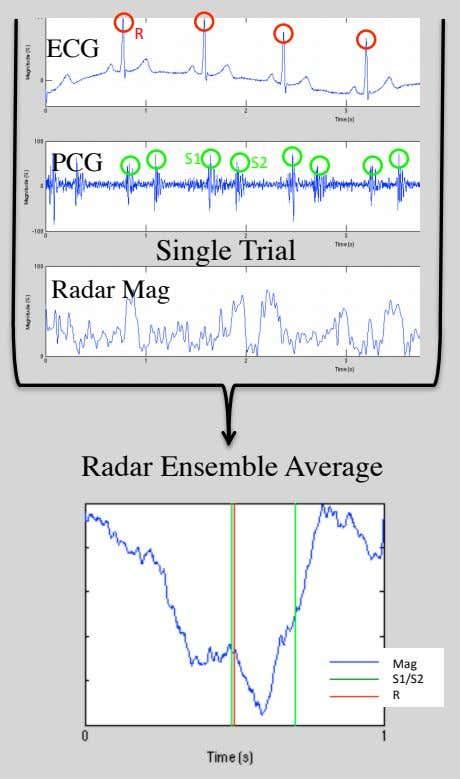 R ECG PCG S1$ S2$ Single Trial Radar Mag Radar Ensemble Average Mag$ S1/S2$ R$$