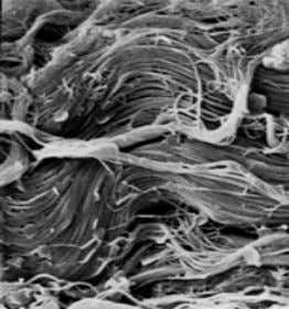 are related to a deficiency of this vital protein. In Normal collagen fibers Arthritic collagen fibers