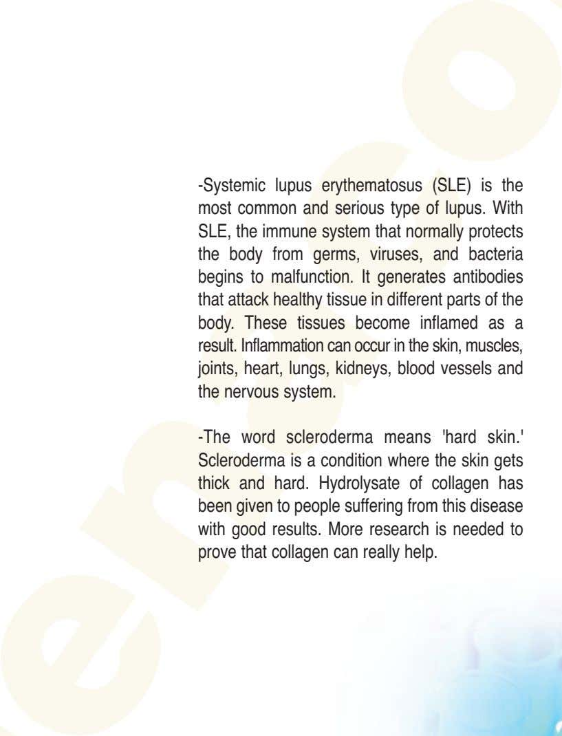 -Systemic lupus erythematosus (SLE) is the most common and serious type of lupus. With SLE,