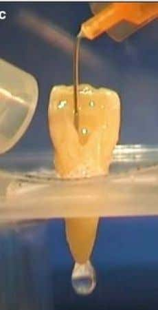 Irrigation reduces friction between the instrument and dentine, improves the cutting effectiveness of the files, dissolves