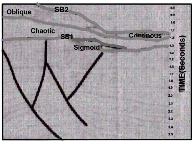 SB2 Oblique Chaotic SB1 Continous Sigmoid TIME(Seconds)