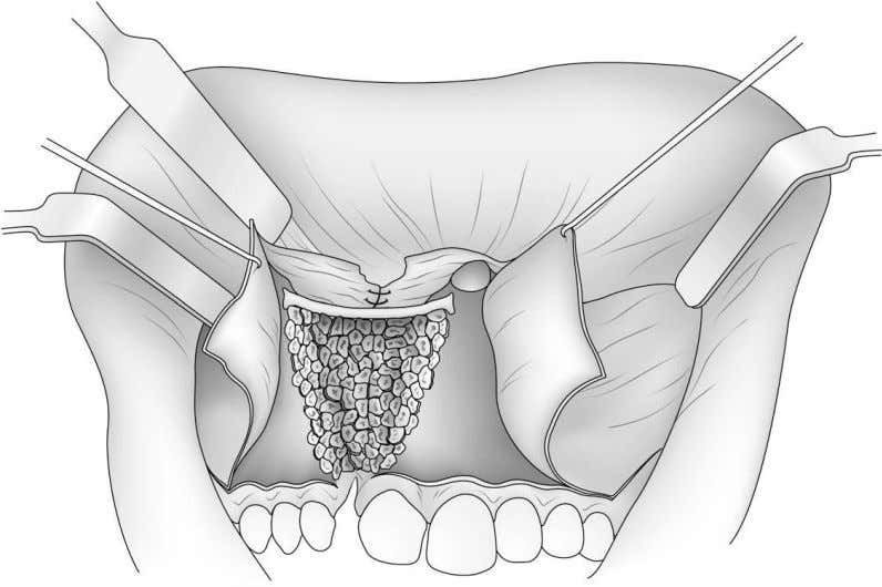 ALVEOLAR-ANTERIOR MAXILLARY CLEFT REPAIR 169 Fig. 2. Elevation of flaps and closure of palatal and nasal