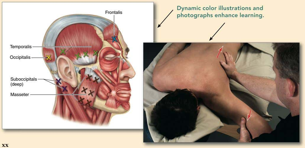 Frontalis Dyna m ic color illu s tration s and photograph s enhance learning. Temporalis
