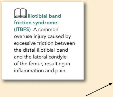 iliotibial band friction s yndro m e (ITBFS) A common overuse injury caused by excessive
