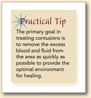 Practical Tip The primary goal in treating contusions is to remove the excess blood and
