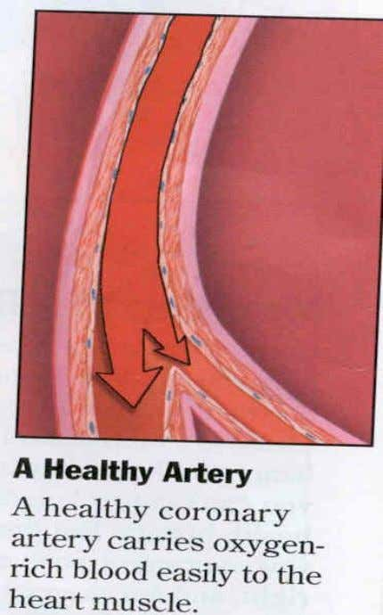 Healthy vessels  A healthy artery easily carries oxygenated blood to the brain tissue.