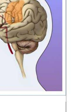 TYPES OF STROKE     Hemorrhagic stroke- Bleeding within the brain caused by rupture