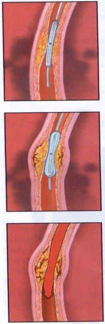 Treatment Modalities, cont.  Transluminal angioplasty  ― roto rooter‖  Insertion of a balloon to