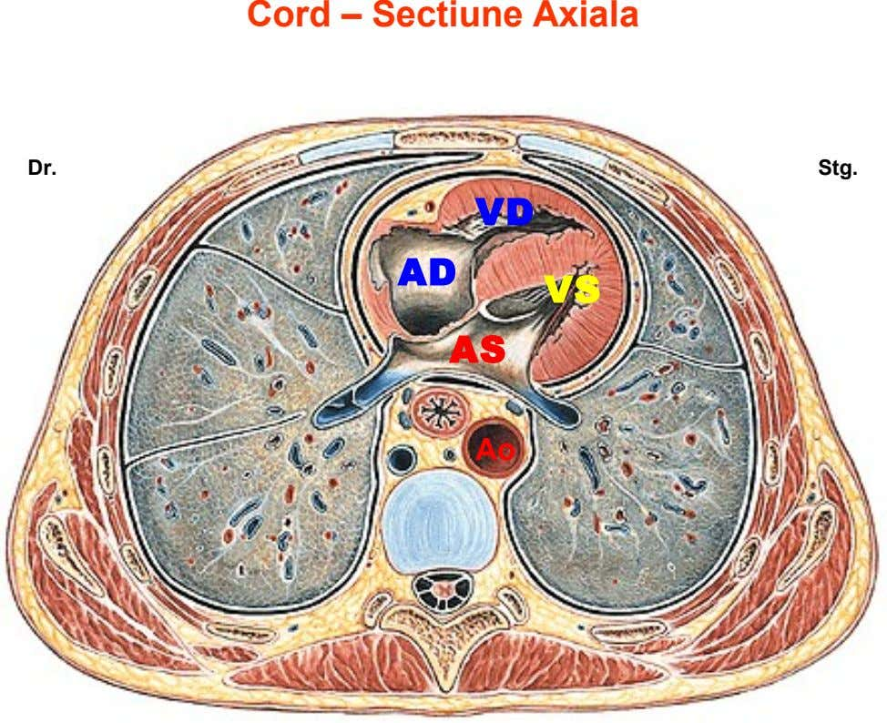 Cord – Sectiune Axiala Dr. Stg. VD AD VS AS Ao