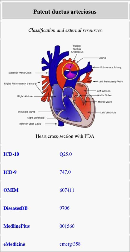 Patent ductus arteriosus Classification and external resources Heart cross-section with PDA ICD-10 Q25.0 ICD-9 747.0 OMIM