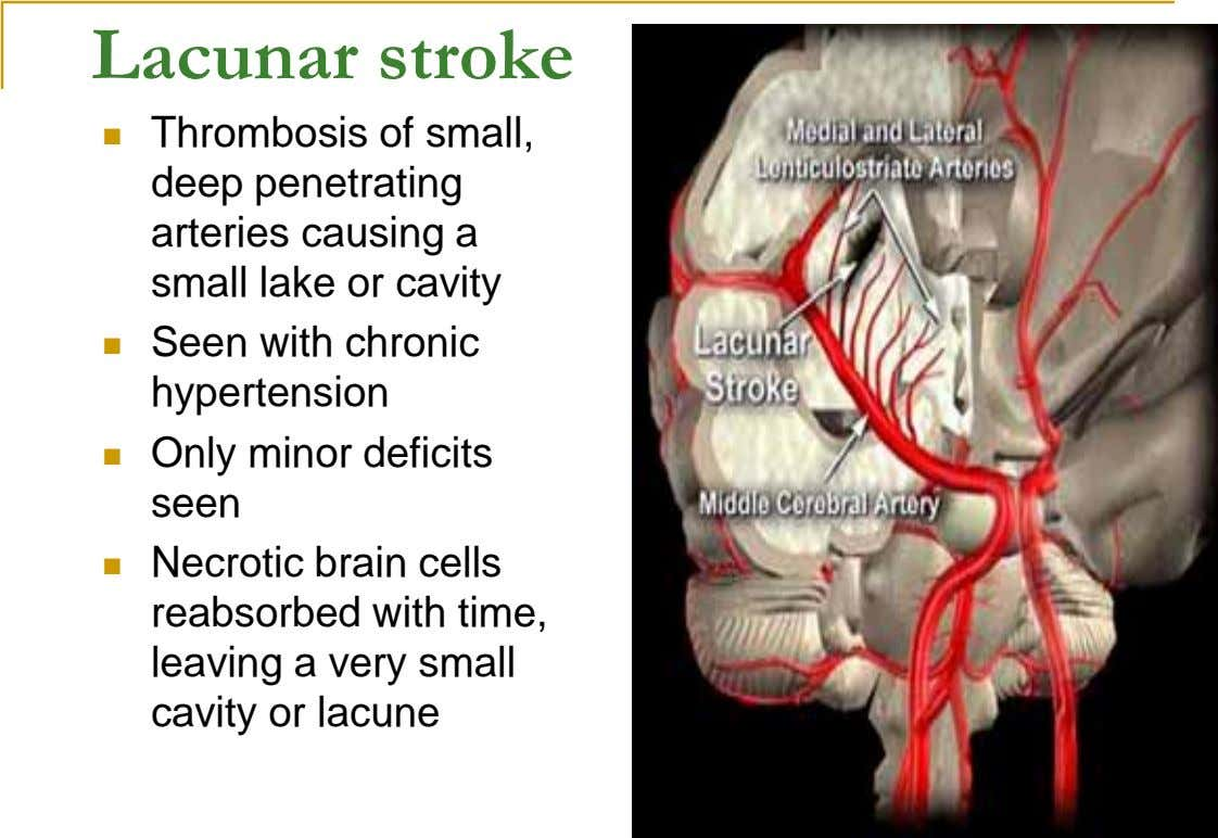 Lacunar stroke  Thrombosis of small, deep penetrating arteries causing a small lake or cavity 