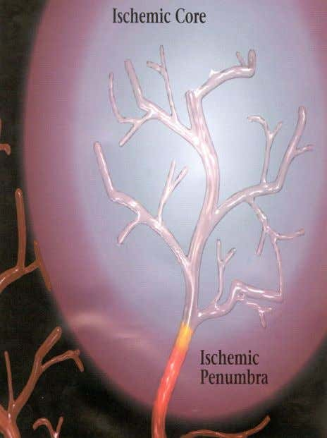 Ischemic Penumbra  Area around infarct  Infarcted brain tissue dies quickly - brain cells within