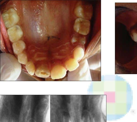 tooth fragment and (b) Fragment attached to sticky wax Figure 4: Fractured segment reattached Figure 3: