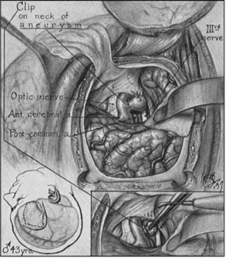 in some patients a clip could not be secured, and in those Fig. 2.16 Illustration from