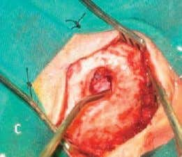 the IAC until the intra-meatal tumor extension was exposed. The length of drilling is determined by