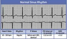 Normal Sinus Rhythm Heart Rate Rhythm P Wave PR Interval QRS (in seconds) (in seconds)