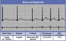 Sinus Arrhythmia Heart Rate Rhythm P Wave PR Interval QRS (in seconds) (in seconds) Usually