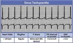 Sinus Tachycardia Heart Rate Rhythm P Wave PR Interval QRS (in seconds) (in seconds) >